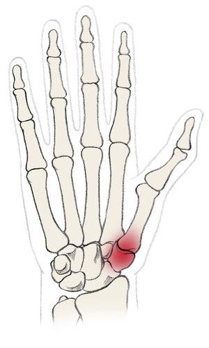 Rhizarthrosis is a degenerative disease effecting the thumb saddle joint.