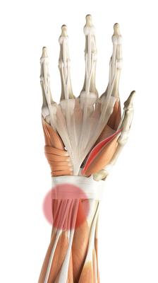 An image of an affected wrist.