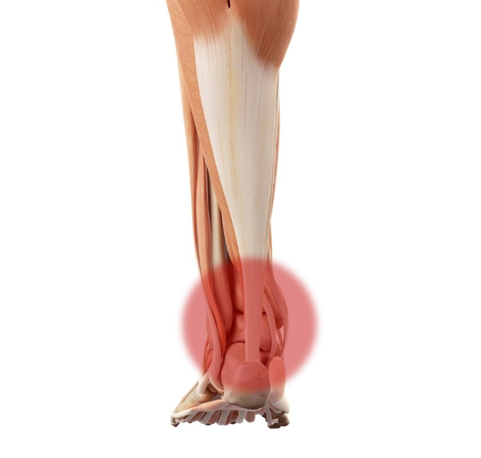 In cases of an Achilles Tendon Rupture, a lump is clearly palpable.
