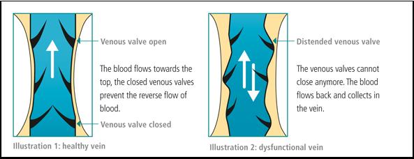 vein disorder