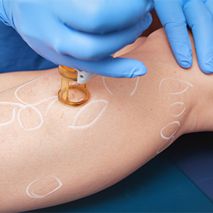 Endovenous laser therapy is a minimal invasive method.
