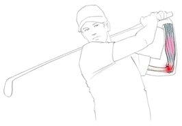 Golferarm grafisch dargestellt
