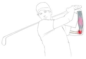 Graphic depiction of Golfer's Arm.