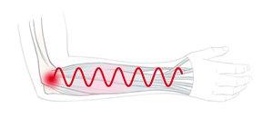 Hand- und Armbewegungen erzeugen Muskelschwingungen, die die Sehnenursprünge am Ellenbogen reizen können.