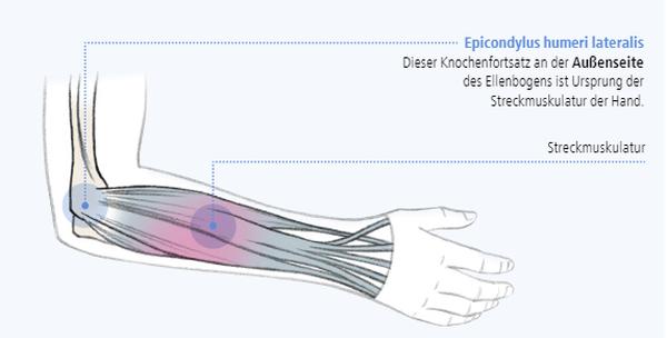 Abbildung zur Epicondylus humeri lateralis