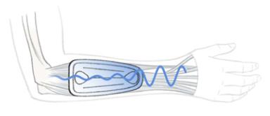 Grafische Darstellung der Wirkung einer Epicondylitisbandage
