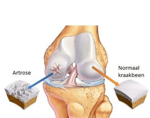 Bij artrose bestaat kraakbeenschade samen met botveranderingen/-schade.