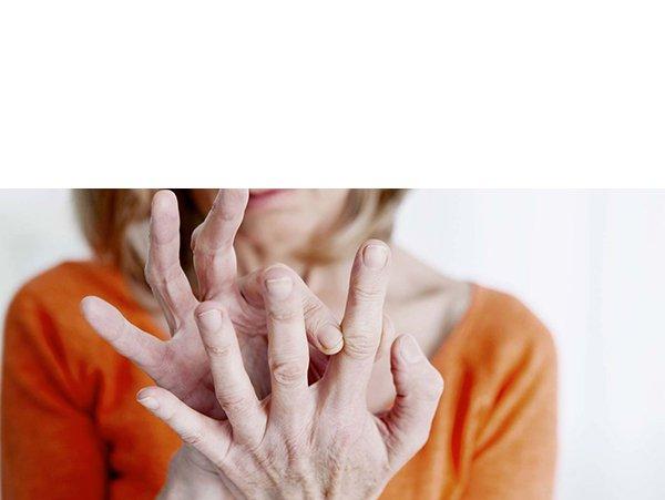 Artrose Handen Vingers En Duim Symptomen Behandeling A Vogel
