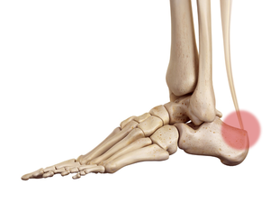 External symptoms of Achilles Tendon Inflammation