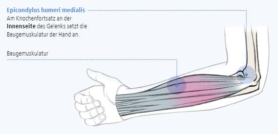 Abbildung zur Epicondylus humeri medialis