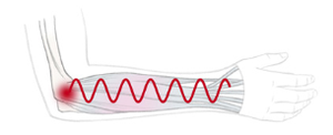 Graphical depiction of muscle vibrations.