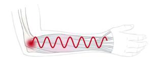 Grafische Darstellung der Muskelschwingungen